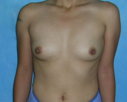 Breast Augmentation Before & After Patient #1461