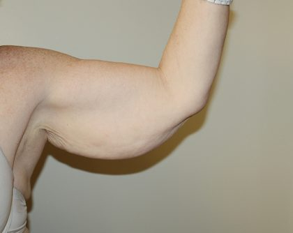 Arm Lift Before & After Patient #776