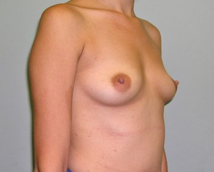 Breast Augmentation Before & After Patient #1500