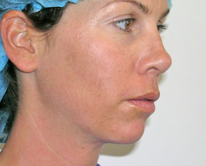 Liposuction Before & After Patient #1188