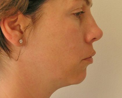 Neck Liposuction Before & After Patient #1188