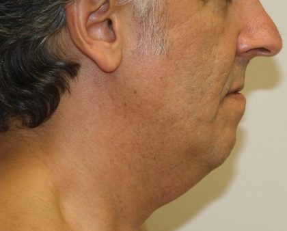 Neck Liposuction Before & After Patient #1213