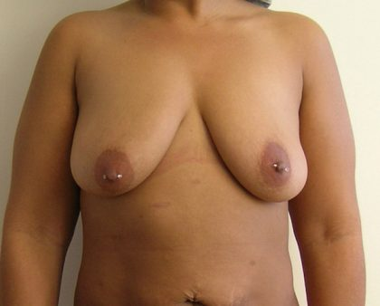 Breast Lift Before & After Patient #802