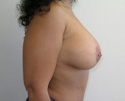 Breast Augmentation Before & After Patient #1477