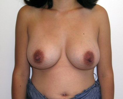Breast Augmentation Before & After Patient #1488