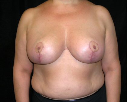 Breast Reduction Before & After Patient #989