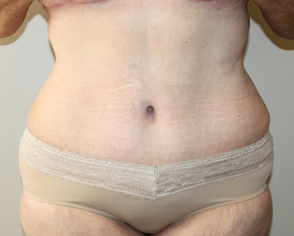 Tummy Tuck Before & After Patient #628