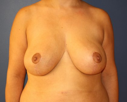 Breast Reduction Before & After Patient #898