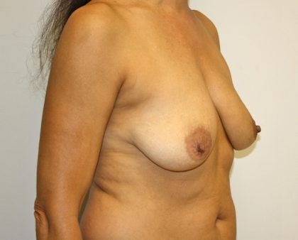 Breast Augmentation Before & After Patient #1565
