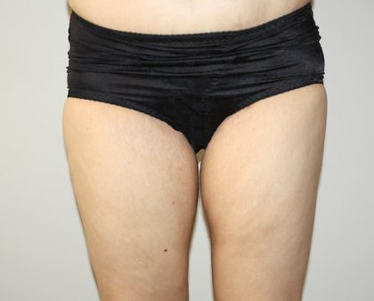 Thigh Lift Before & After Patient #1385