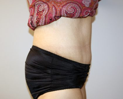 Tummy Tuck Before & After Patient #521