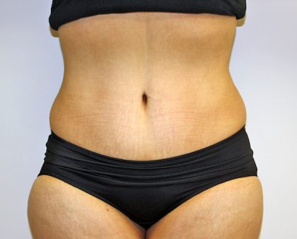 Tummy Tuck Before & After Patient #635