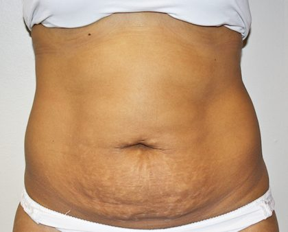 Tummy Tuck Before & After Patient #496
