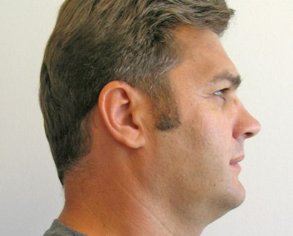 Facial Implants Before & After Patient #1083