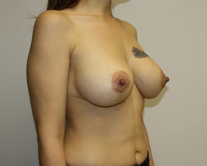 Breast Lift Before & After Patient #813