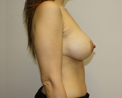 Breast Augmentation Before & After Patient #1558