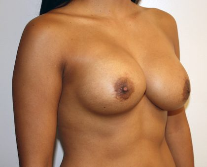 Breast Revision Before & After Patient #1031