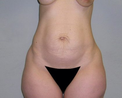 Tummy Tuck Before & After Patient #482