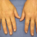 Hand Rejuvenation Before & After Patient #1090