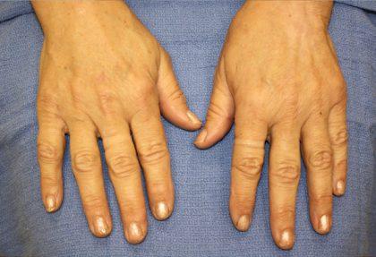 Hand Rejuvenation Before & After Patient #1090
