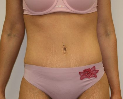 Tummy Tuck Before & After Patient #620
