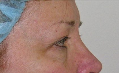 Eyelid Surgery Before & After Patient #736