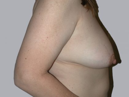 Breast Lift Before & After Patient #834