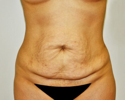 Tummy Tuck Before & After Patient #642
