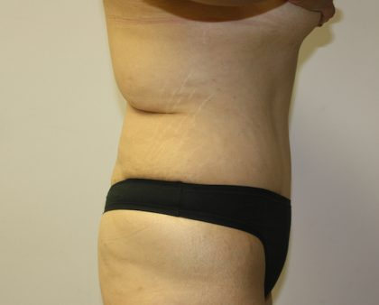 Tummy Tuck Before & After Patient #549