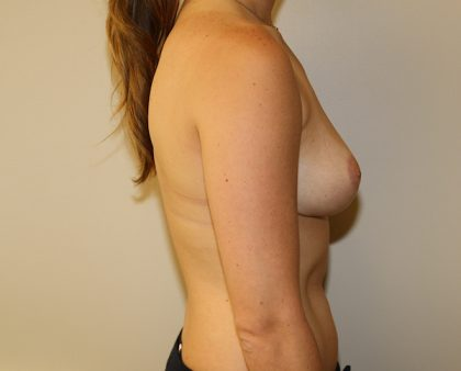 Breast Reduction Before & After Patient #919