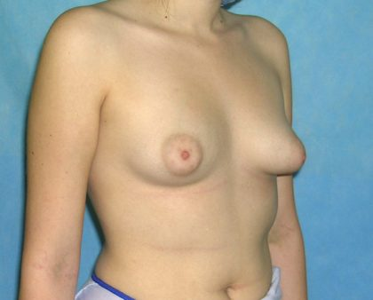 Breast Augmentation Before & After Patient #1432