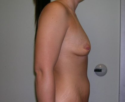 Breast Augmentation Before & After Patient #1579