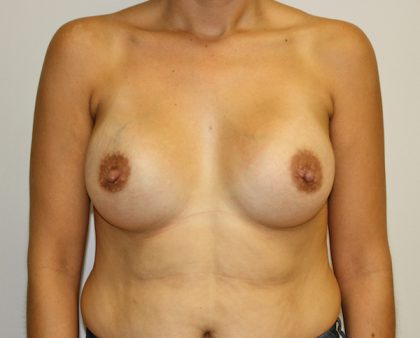 Breast Augmentation Before & After Patient #1681