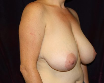 Breast Reduction Before & After Patient #1017