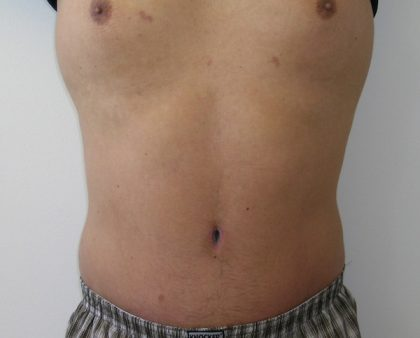 Tummy Tuck Before & After Patient #556