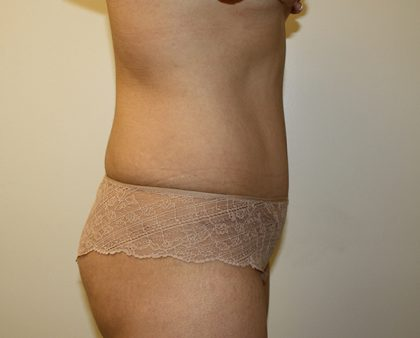 Liposuction Before & After Patient #1120