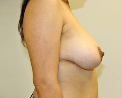 Breast Reduction Before & After Patient #940