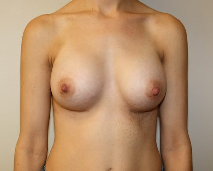 Breast Augmentation Before & After Patient #1621