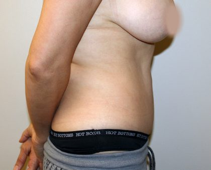 Tummy Tuck Before & After Patient #663