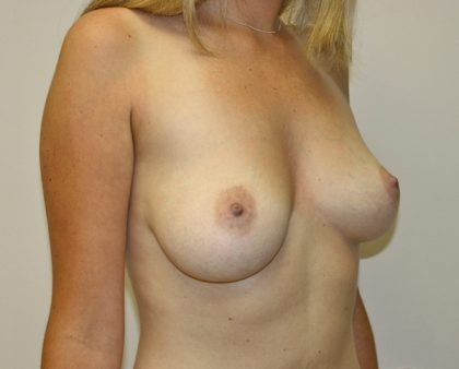 Breast Lift Before & After Patient #820