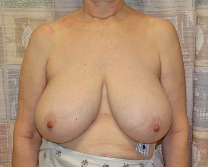 Breast Reduction Before & After Patient #975