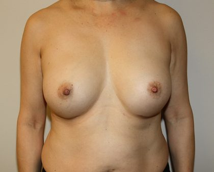 Breast Augmentation Before & After Patient #1468