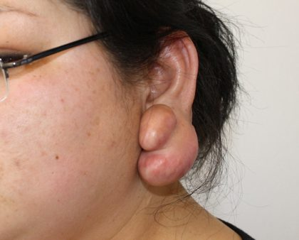 Keloid Surgery Before & After Patient #1100