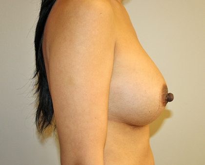Breast Augmentation Before & After Patient #1439