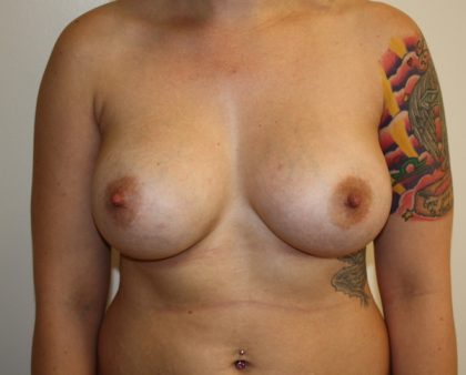 Breast Augmentation Before & After Patient #1709
