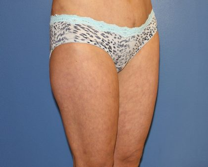 Thigh Lift Before & After Patient #1380