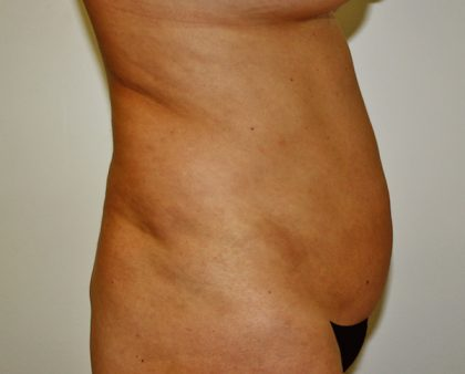 Tummy Tuck Before & After Patient #514