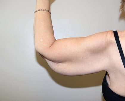 Arm Lift Before & After Patient #786