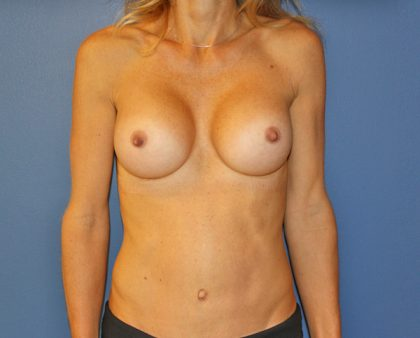 Tummy Tuck Before & After Patient #691