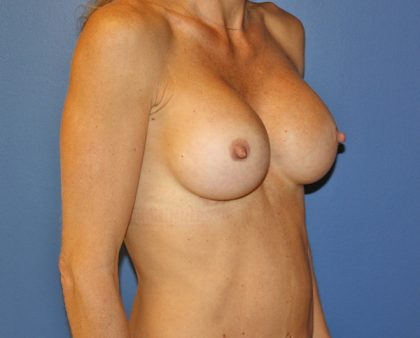 Breast Augmentation Before & After Patient #1723